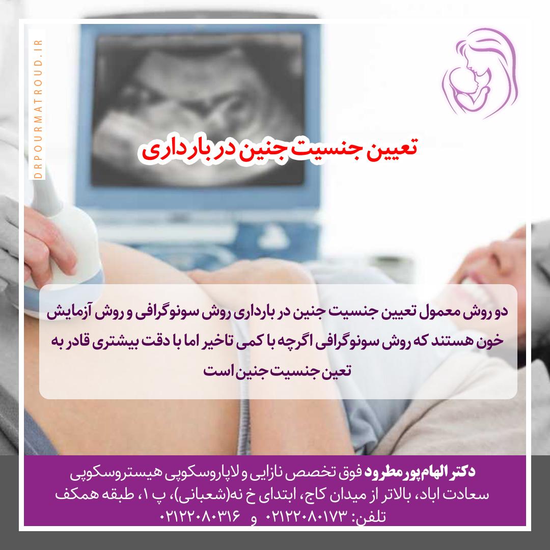 تعیین جنسیت جنین در بارداری