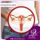 بارداری بعد از فیبروم رحم
